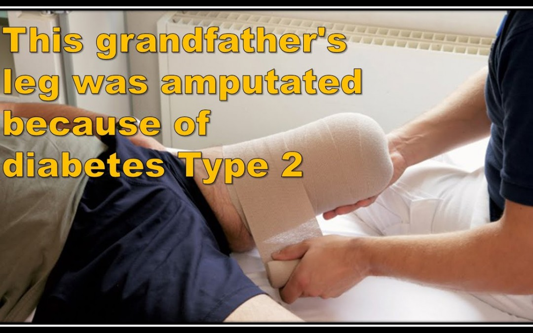 Grandfather Reverses Diabetes Type 2 With Odd Diet Hack