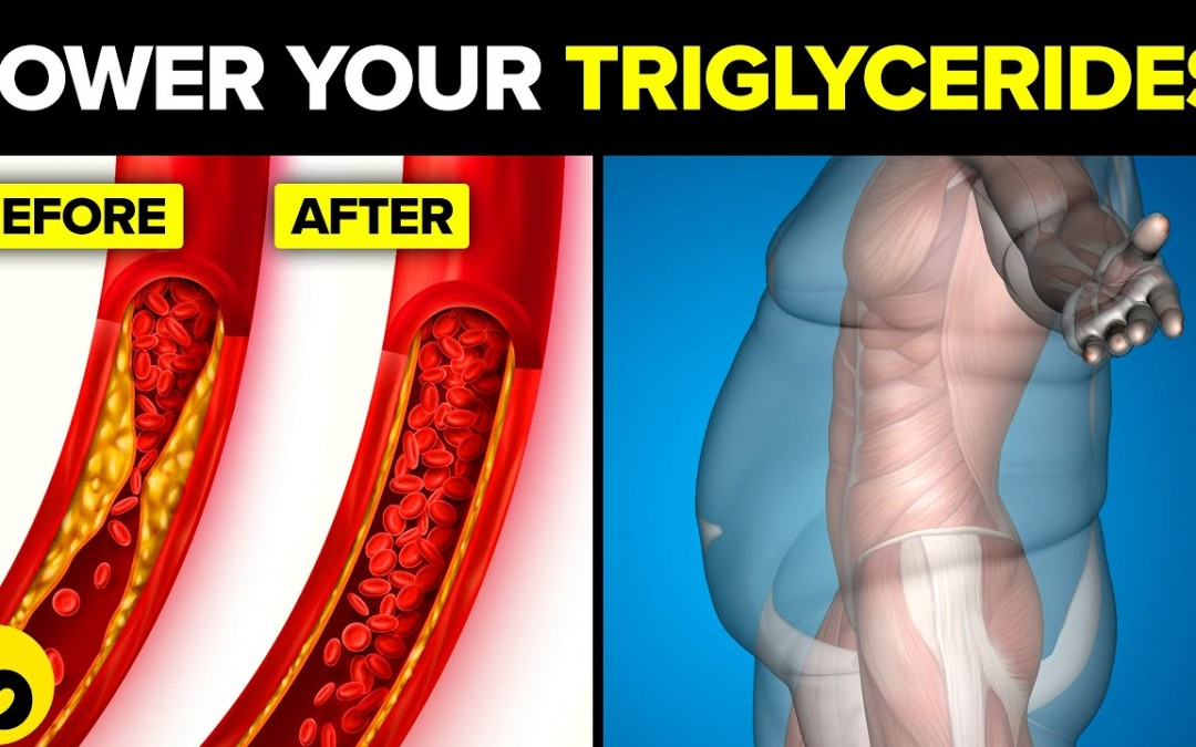 13 Simple Ways To Lower Your Triglycerides